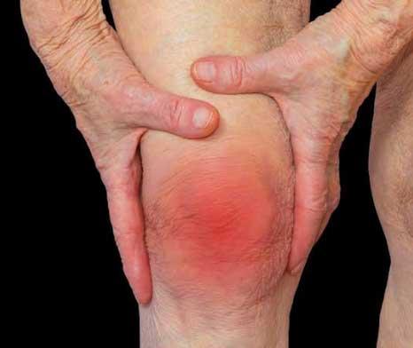 Uric Acid/ Arthritis